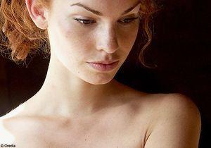 Prothèses mammaires défectueuses : 350 plaintes déposées