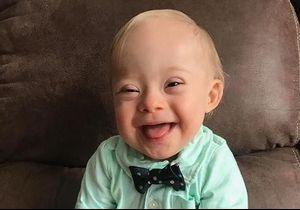 Un bébé trisomique devient enfin l'égérie d'une célèbre marque