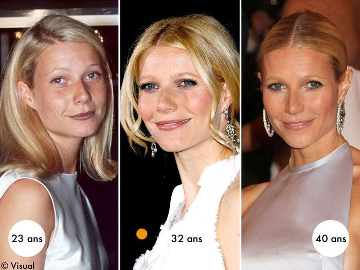 Gwyneth Paltrow avant et après chirurgie esthétique