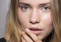 traces acne rouge comment les camoufler