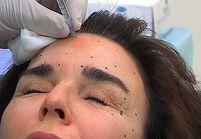 Botox : mode d'emploi